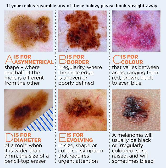 skin cancer risk moles